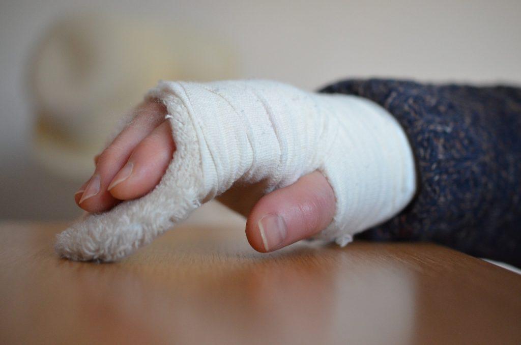 Fracture de la main