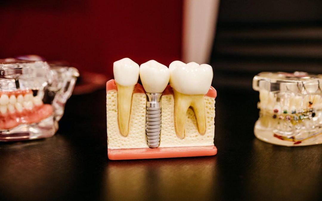 Orthodontie : découvrez le traitement Invisalign
