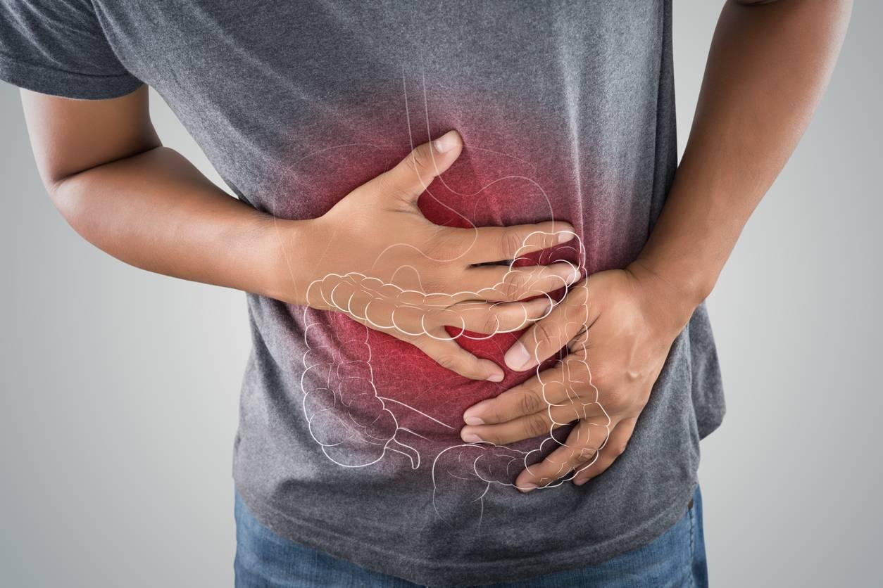 stase stercorale douleurs abdominales